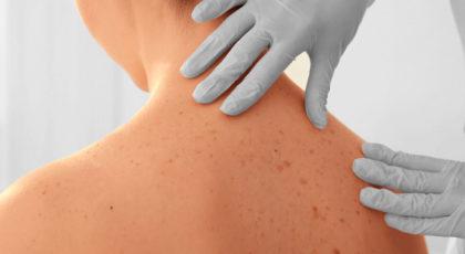 Klassische Dermatologie und Allergologie