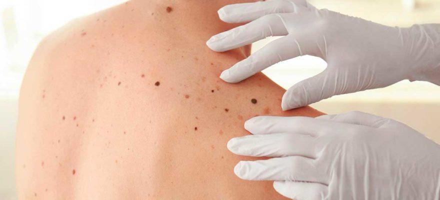 Diagnostik und Therapie von akuten Hauterkrankungen