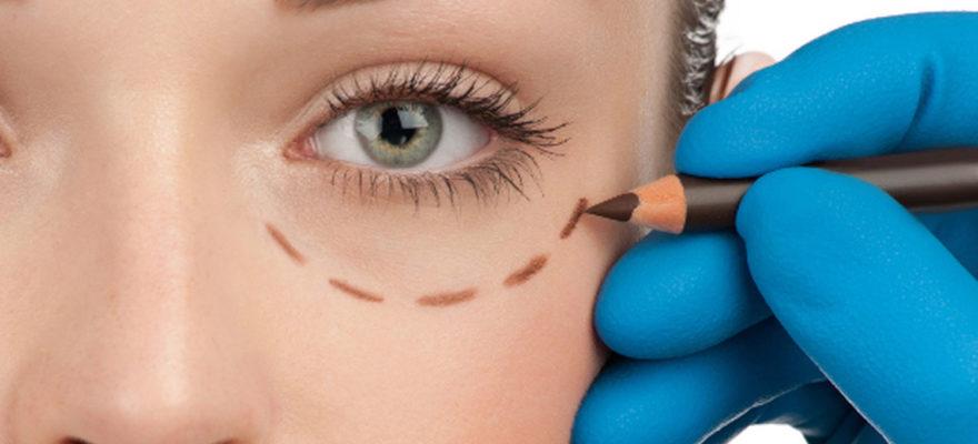 Lidstraffung und Lidoperation (Blepharoplastik)