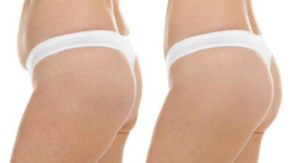 Liposuction | Fettabsaugen