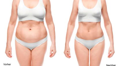 Radiofrequenzassistierte Liposuction