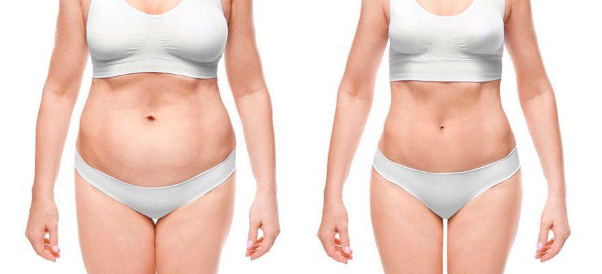 Radiofrequenzassistierte Liposuction