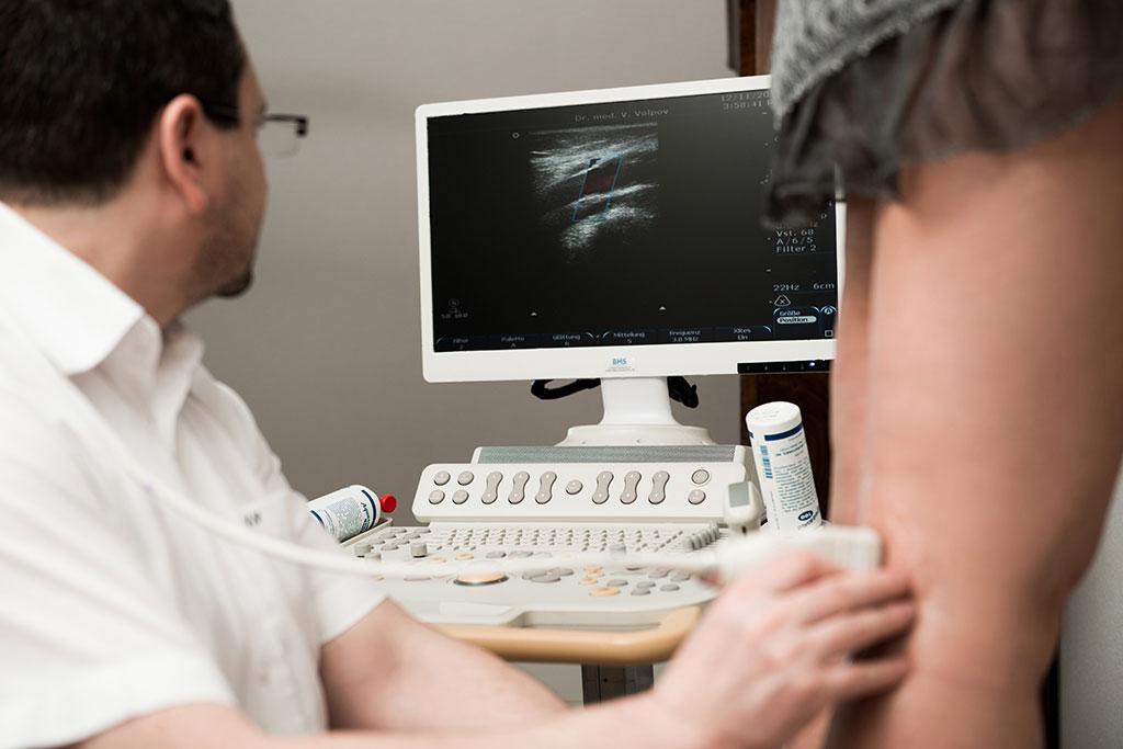Krampfadern Diagnostik